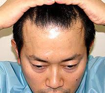 宮迫博之はAGA治療で薄毛完治?本当に効果がある抜け毛・ハゲ対策まとめ
