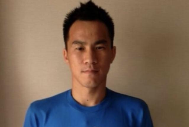 岡崎選手は頭皮の植毛で生え際の薄毛を治療?