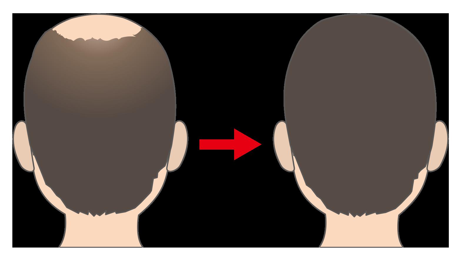 岡崎選手は頭皮の植毛で生え際を治療?