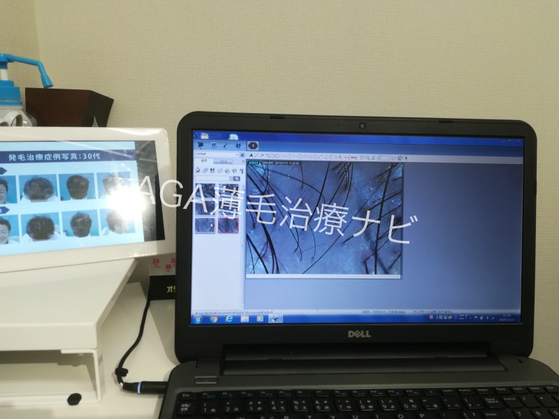 【体験談】AGAスキンクリニックの無料カウンセリング診断を体験!