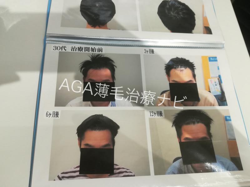 【AGA治療体験談】AGAスキンクリニックの発毛効果や費用を報告