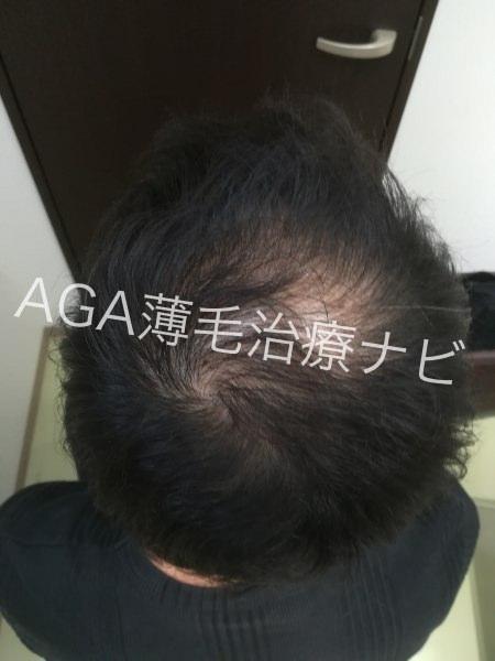 生え際の産毛が太く復活!育毛方法は?【AGA治療体験談3ヶ月経過】