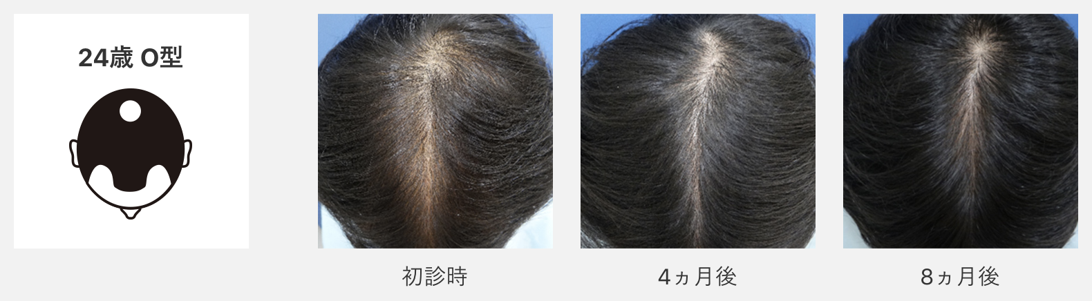 中居正広の生え際の薄毛対策はAGA治療!植毛・かつら疑惑も暴露!