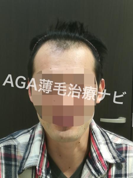 【治療2回目】初期脱毛の期間や量を報告《AGA治療日記1ヶ月目》