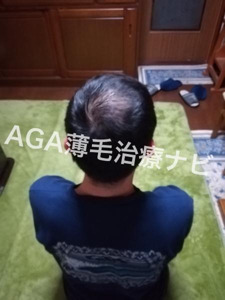 AGAスキンクリニックの薬の郵送や遠隔診療を解説《治療2ヶ月経過》