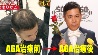ナイナイ岡村隆史は薄毛・AGA治療で髪が復活!育毛方法や病院を暴露!