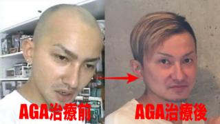 ISSAの薄毛治療を徹底解説!植毛・増毛・かつら疑惑も全部暴露!